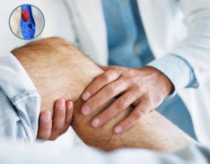 Tehnica imagistică ar putea deveni tratament pentru tromboza venoasă profundă