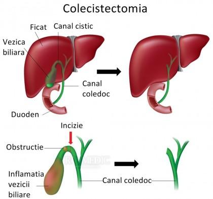 Alimentația și digestia după colecistectomie (implicațiile lipsei vezicii biliare)