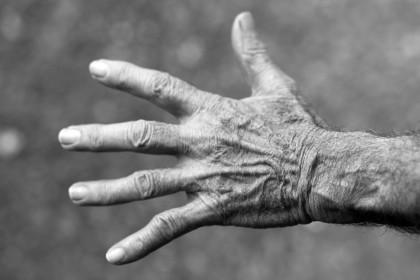 Venele proeminente - cauze: varice, flebită sau altceva?