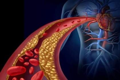 Citokina APRIL protejează de bolile cardiovasculare aterosclerotice