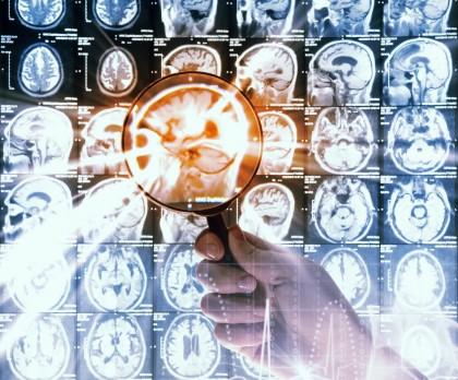 Probabilitatea de a dezvolta boala Alzheimer, estimată cu o precizie de aproape 100%