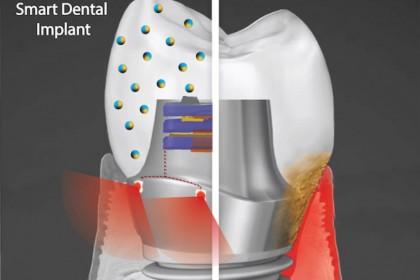 Implant dentar inovator, prezentat de cercetătorii americani