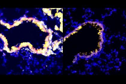 Metodă nouă de contracarare a efectului imunosupresor întâlnit în bolile canceroase
