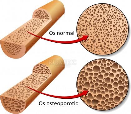 Diagnosticul osteoporozei și testul de densitate osoasă