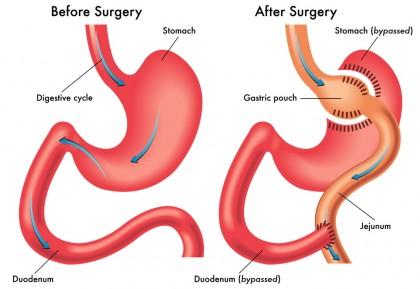 Bypass-ul gastric, mai puțin sigur decât o altă procedură bariatrică comună, dar mai eficient