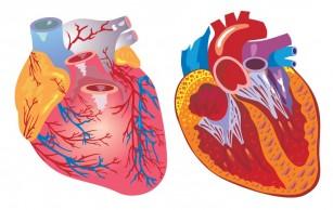 Coarctația de aortă