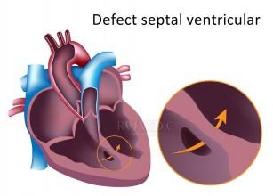 Defectul septal ventricular (DSV)