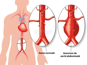 Anevrismele aortei abdominale