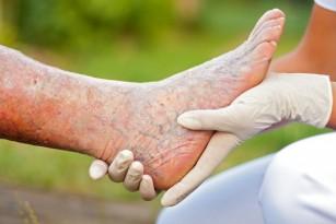 tratamentul venelor varicoase ale venelor profunde prin remedii populare)