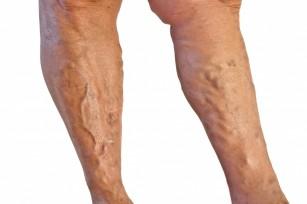 exerciții de la vene și venele varicoase)