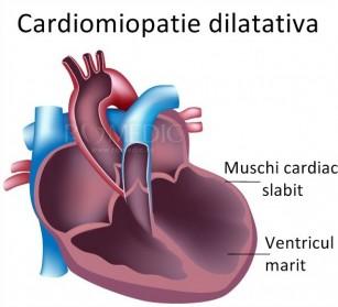 Cardiomiopatia dilatativa idiopatica