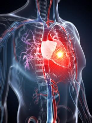 Cardiomiopatia hipertrofica (CMH)