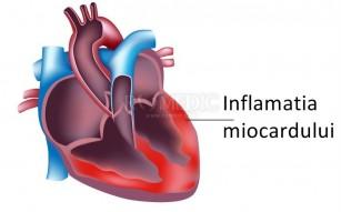 Miocardita virala