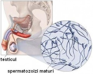 Cauze testiculare de infertilitate