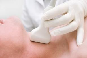 Tumorile tiroidiene (neoplasme tiroidiene)