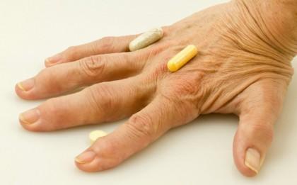 Artrita psoriazica