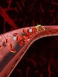 Sindrom antifosfolipidic