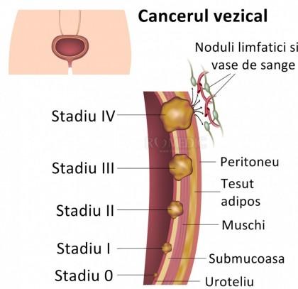 Cancer vezical