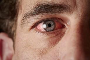 Sindromul Parinaud