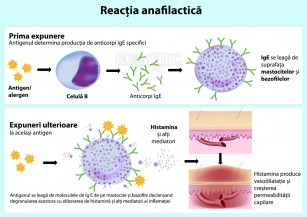Anafilaxia si socul anafilactic