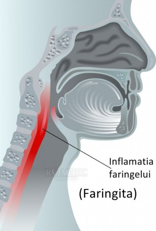 Faringita