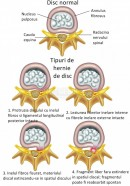 Hernia de disc - tipuri