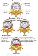 Hernia de disc - localizari