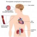 Hipertensiunea arterială - complicații