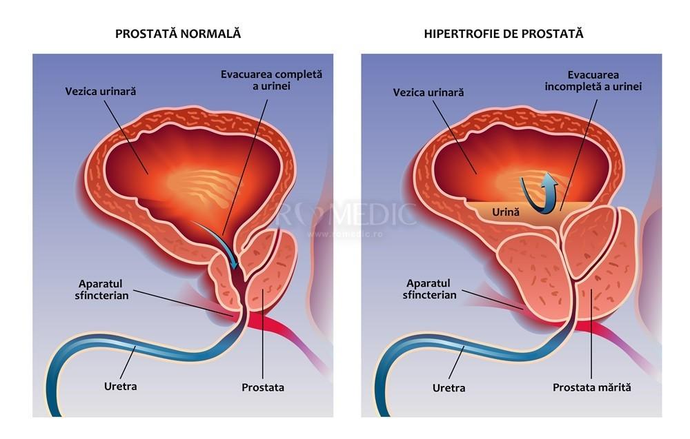 adenom de prostata dex
