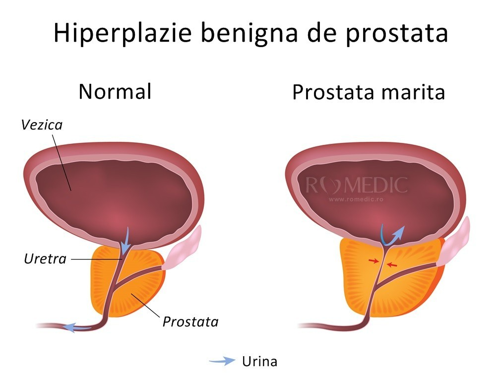 Prostata   Anatomie si fiziologie