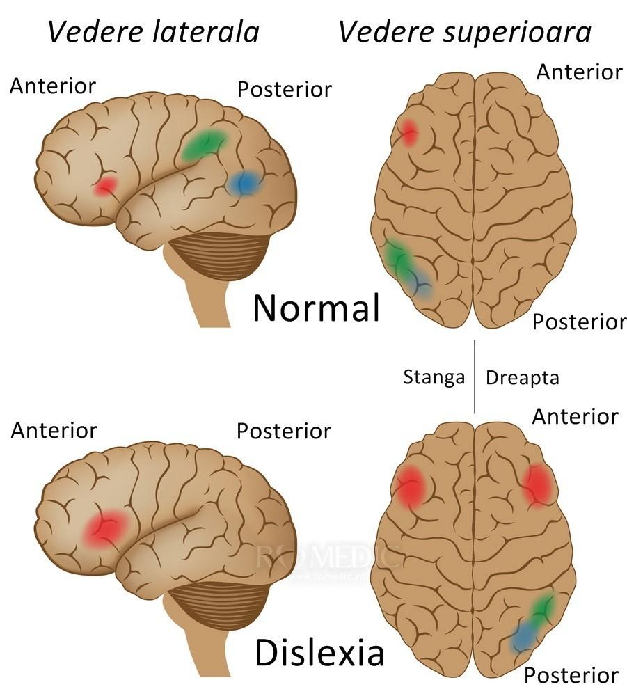 creierul chimiei creierului pierdere în greutate