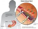 Diabet tip II