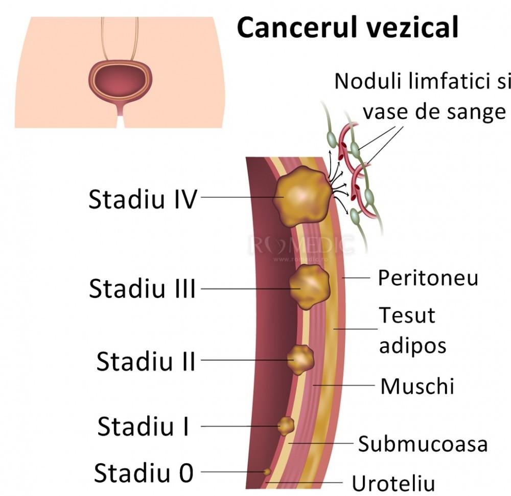 cancer vezica urinara barbati)