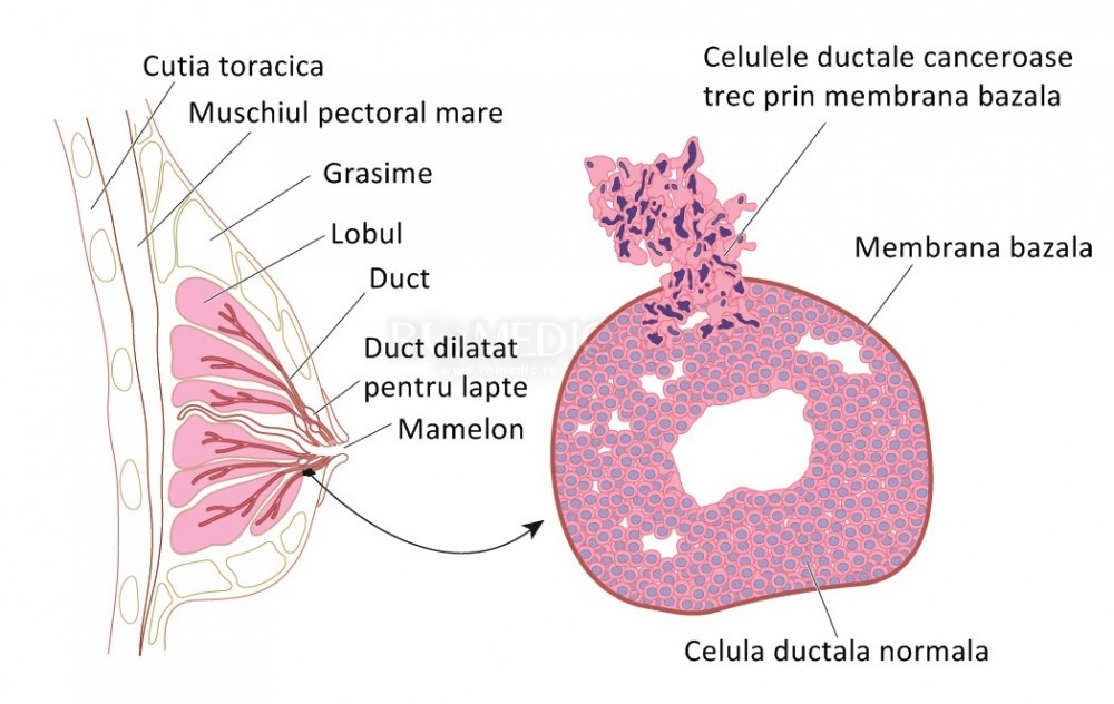 Cancer mamar in alaptare, Articole Similare