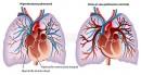 Hipertensiunea pulmonară