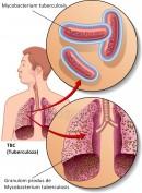 Tuberculoza (TBC)