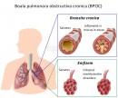Boala pulmonară obstructivă cronică