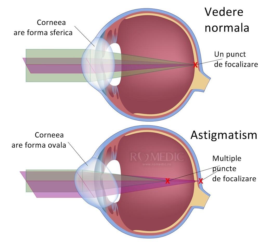 diagramă oculară pentru vedere)