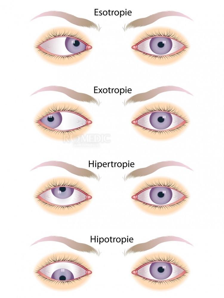 SD în structura oftalmologică a ochilor
