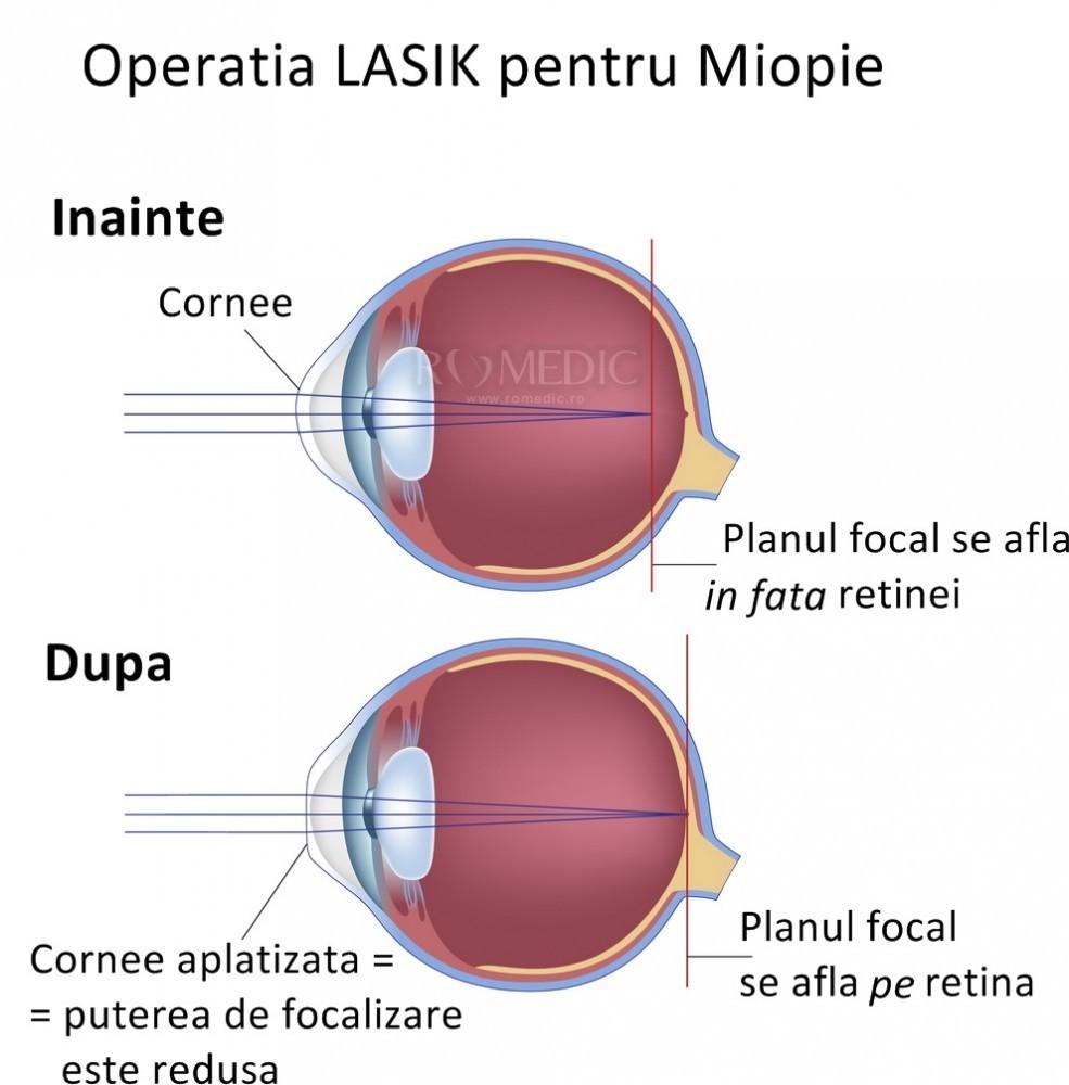 structura histologică a organului de vedere