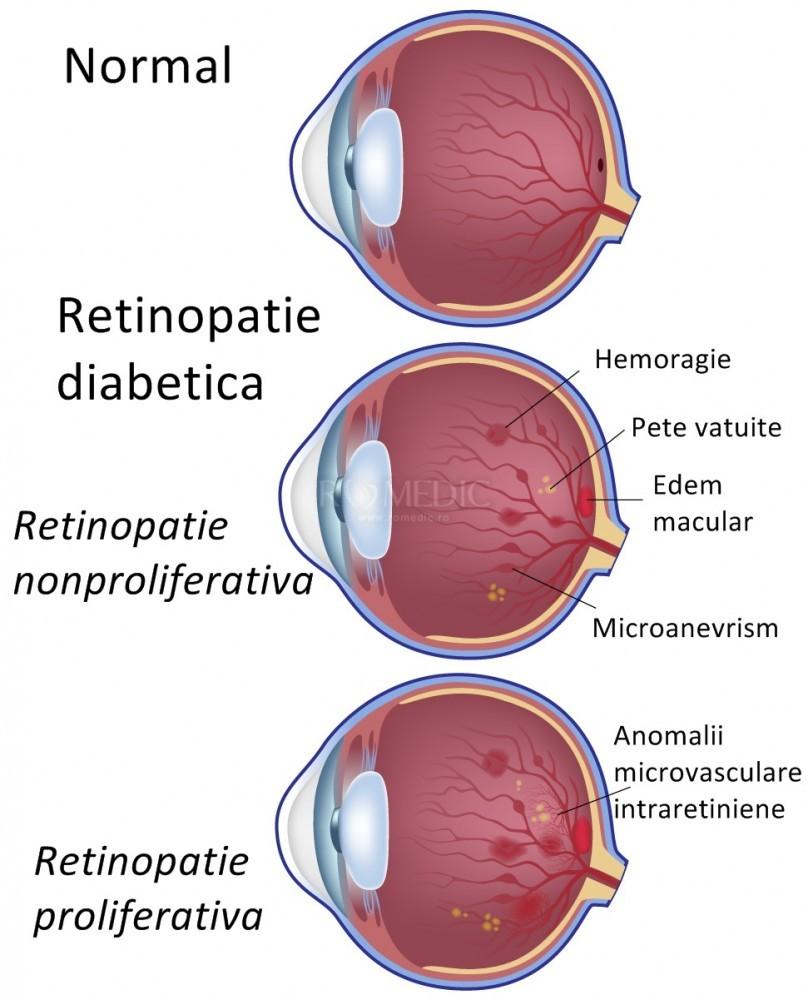 Tratament vizual pentru hardware, Coagularea retinei cu laser