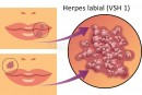 Herpesul labial