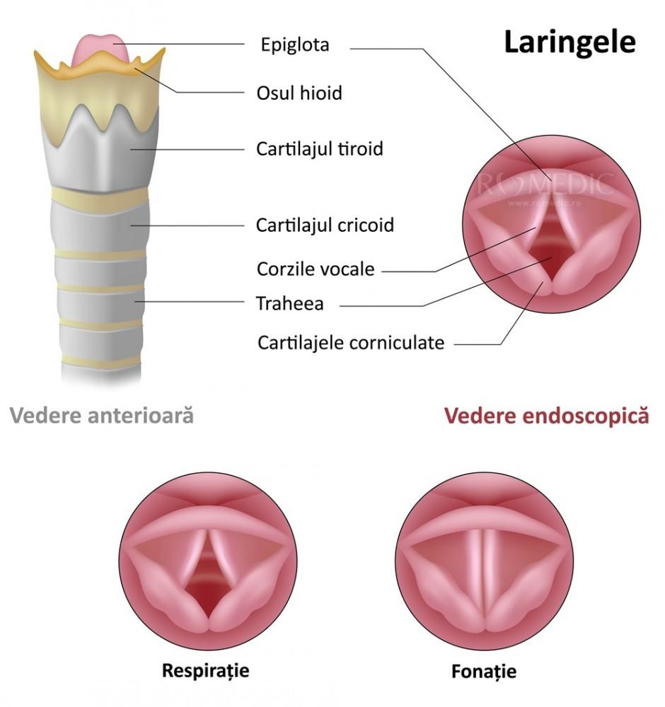 inflamația țesutului cartilaginos al laringelui