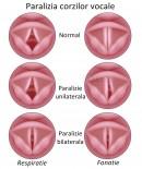 Paralizia corzilor vocale