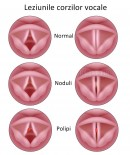 Leziunile corzilor vocale