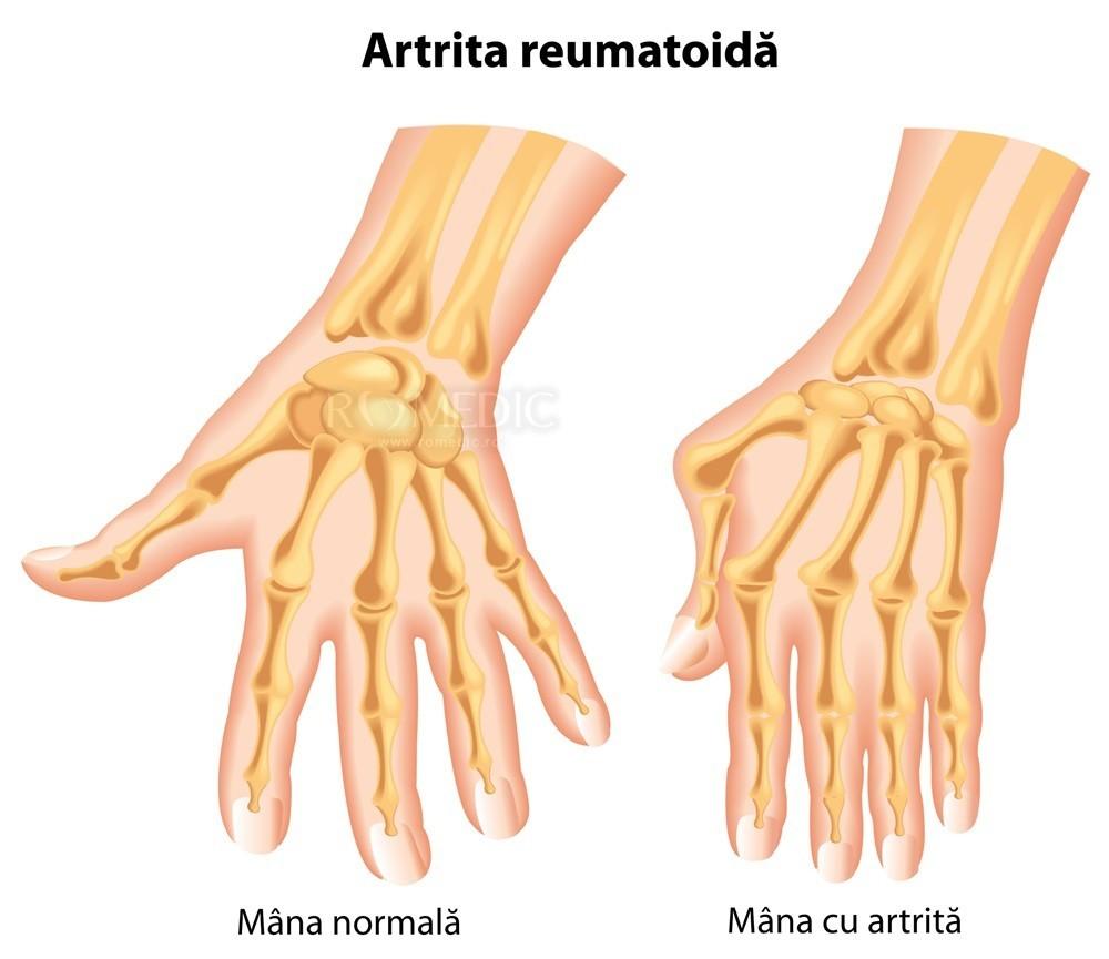 artrita oaselor brațului)