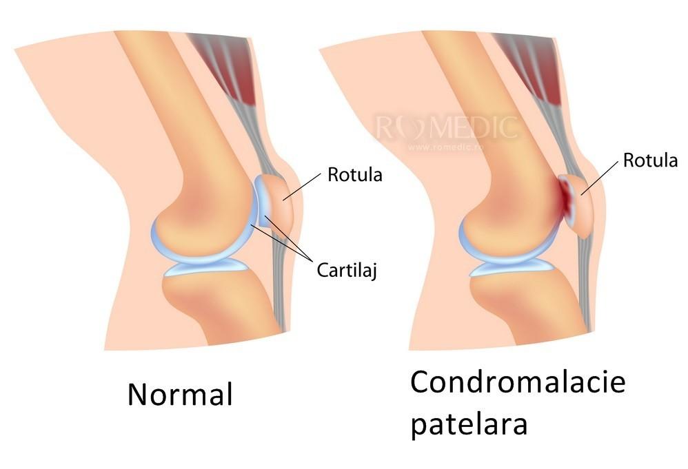 durere la nivelul coapsei chiar deasupra genunchiului