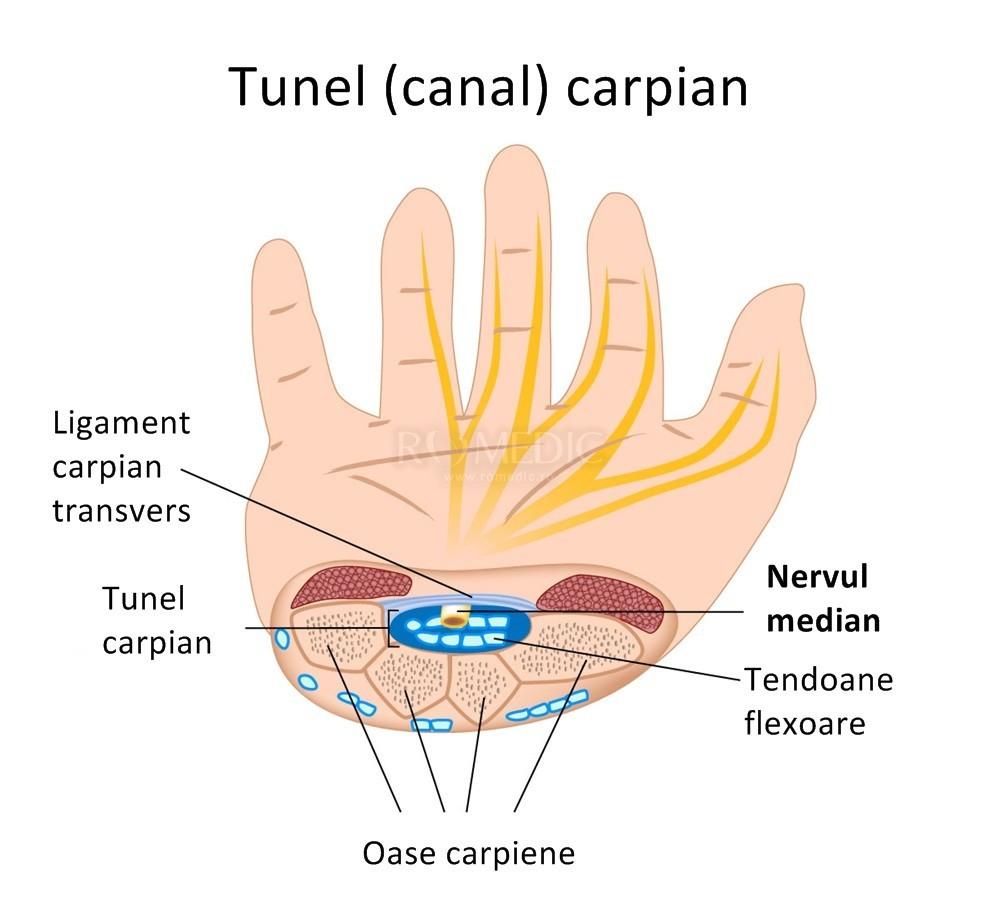 dureri articulare tratament cu peroxid de hidrogen artroza deformantă a articulațiilor metacarpofalangiene