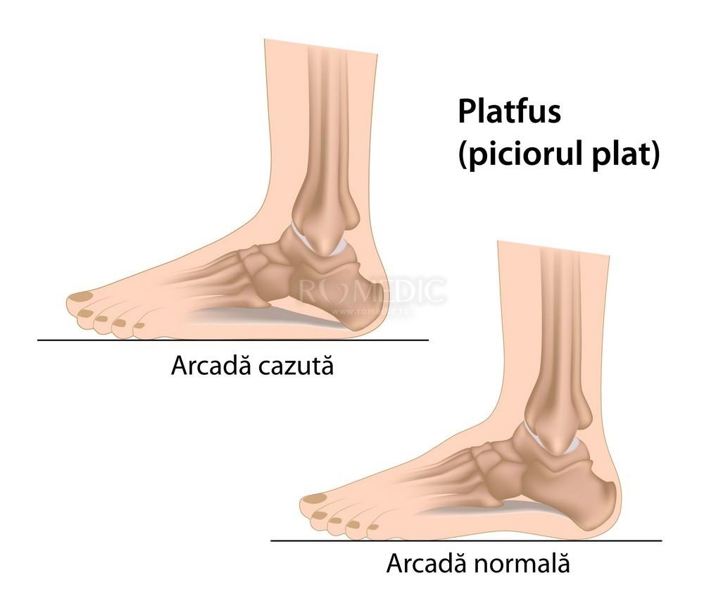 durere în articulația inferioară a piciorului drept)
