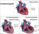 Cardiomiopatiile